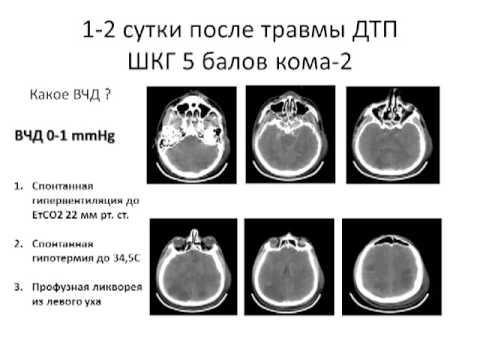 Измерение ВЧД  современный подход А.В. Ошоров (2 МСН)
