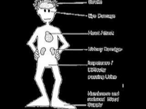 Typ-2-Diabetes zu behandeln, indem