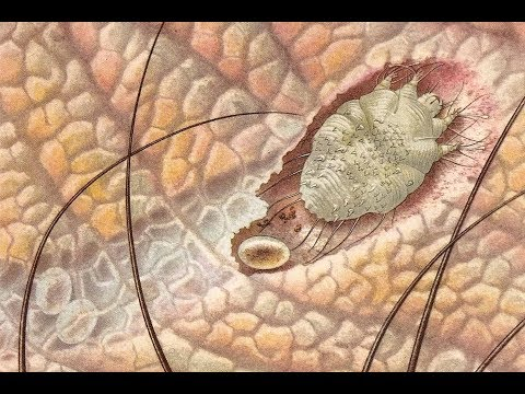Bélparazita csecsemőknél