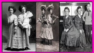 Сиамские Близнецы Роза и Жозефа Блажек Познали Счастье Материнства-их Печальная Одна Жизнь на Двоих