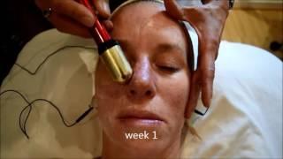 Electro Myopulse Accuscope Facial - Shannon - Week 1 - L'escape Spa