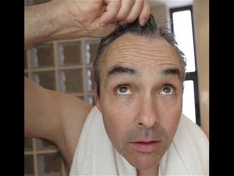 Grzybica leczenie włosów