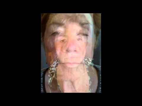 Les raisons du psoriasis sur le membre sexuel