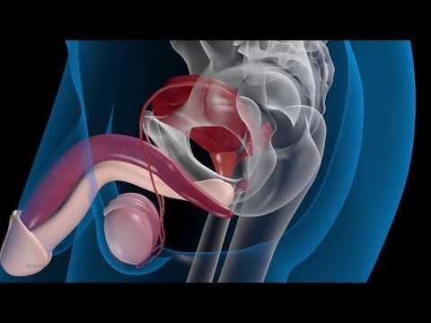 Lade für Video Prostatitis
