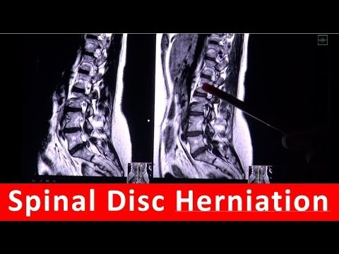 download link youtube: spinal disc herniation in mri scan, Powerpoint templates