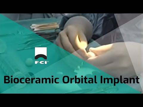 Enucleation. Evisceration. Secondary Implant. PEG Implant. Bioceramic Orbital Implant
