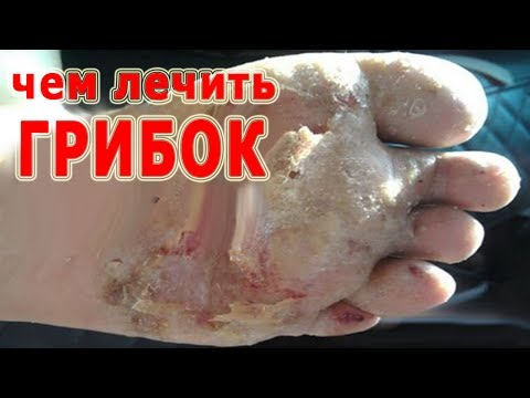 Comme délivrer la peau des parasites
