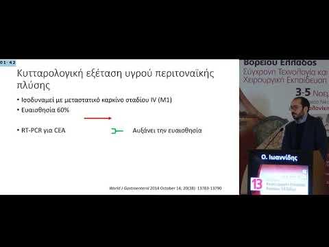 Ιωαννίδης Ο - Για τη σταδιοποίηση του εκτεταμένου καρκίνου του στομάχου Λαπαροσκοπική χειρουργική
