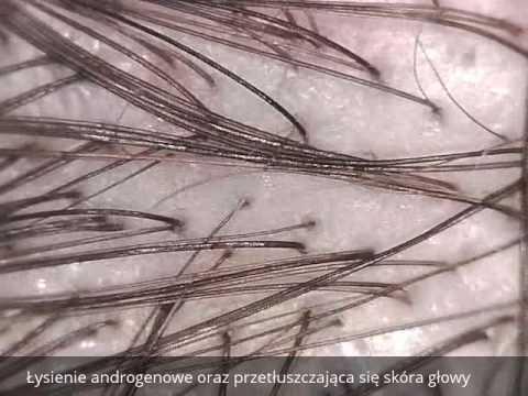 Najlepsze kliniki w Moskwie transplantacji włosów