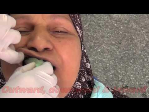 Le nettoyage de lorganisme au psoriasis le forum