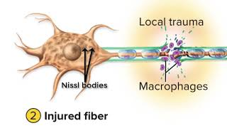 Damage and Repair in the Peripheral Nervous System