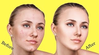 How to Get Rid of Facial Redness Overnight at Home