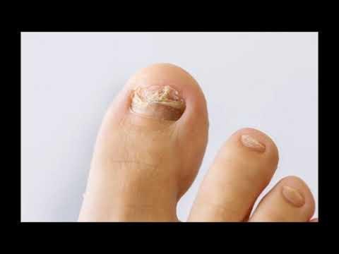 La mejor crema del hongo del pie