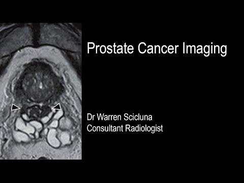 Prostate gland location