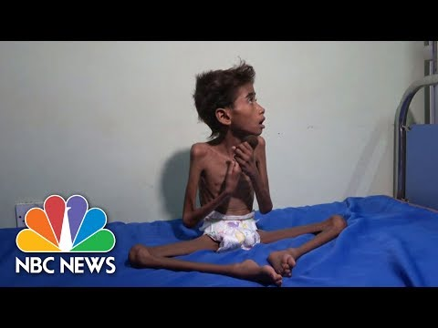 The Face Of Suffering: Famine, Cholera Wreak Havoc In War-Torn Yemen | NBC News