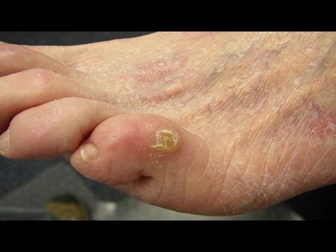 Video Home Remedies for Corn on feet