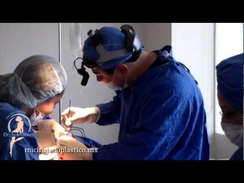 El primer día después de la operación del aumento del pecho