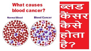 Blood cancer kaise hota hai | ब्लड कैंसर कैसे होता है|ब्लड कैंसर होने के कारण| causes of blood cancer - Download this Video in MP3, M4A, WEBM, MP4, 3GP