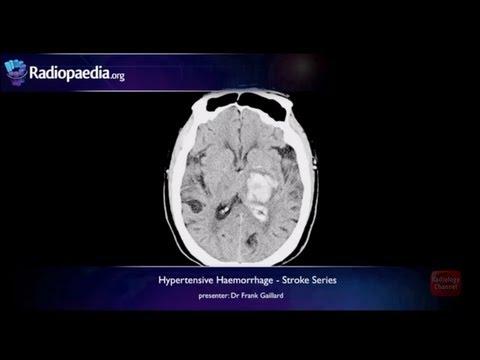 Znakovi hipertenzije i njeno liječenje