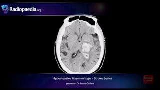 Stroke: Hypertensive haemorrhage - radiology video tutorial (MRI, CT)
