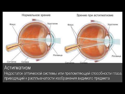 Гимнастика для глаз от зрения