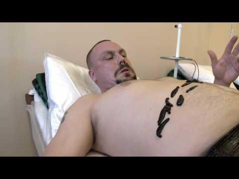 Operazione su vene di gambe in Dnipropetrovsk