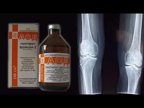 АСД-2Ф в лечении артрита.