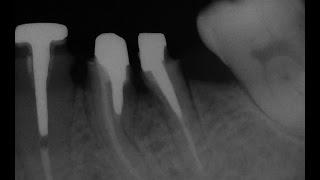 Лечить зуб с перфорацией или удалить?