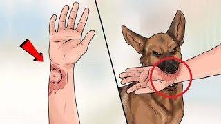कुत्ते के हमले से बचने के 5 सबसे आसान तरीके ( काटने के बाद क्या करे ) How to Survive a Dog Attack