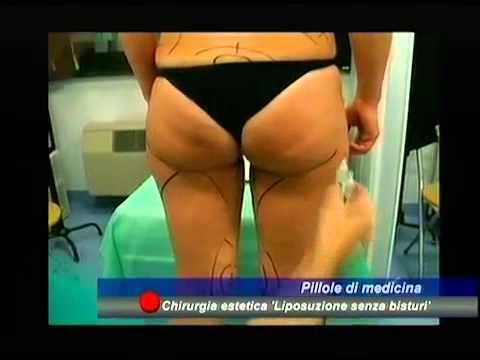 Metodi moderni e il trattamento della prostatite cronica