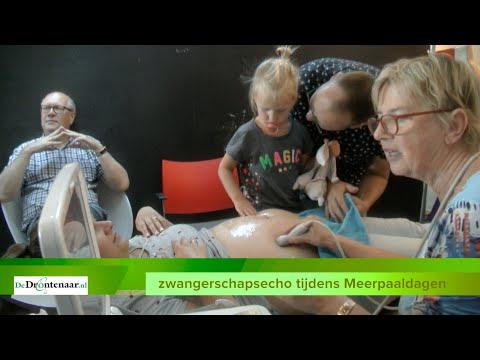 """VIDEO   Zwangerschapsecho Meerpaaldagen: """"Het is gratis en een keer extra kijken is altijd leuk"""""""