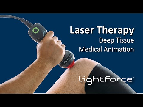 Video Deep Tissue Laser Therapy Medical Animation