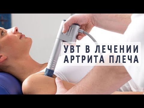 Лечение артрита плечевого сустава с помощью ударно-волновой терапии (УВТ)