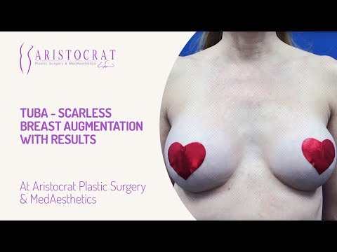 TUBA- Scarless Breast Augmentation with Results