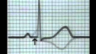 Wolff Parkinson White Syndrome - ECG