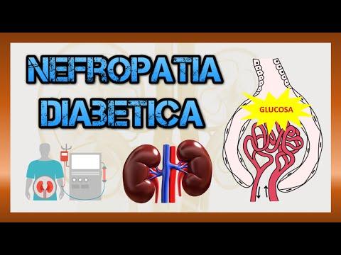Trasplante de células madre para la diabetes