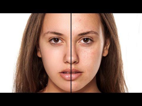 Trattamento di catrame di betulla di eczema