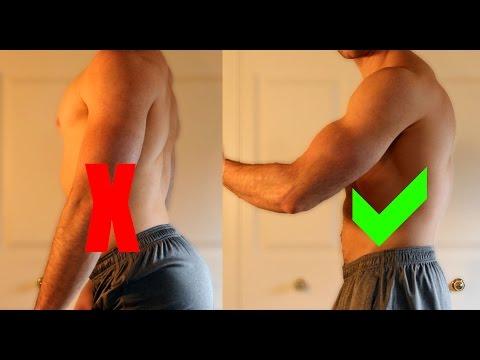 Trattamento di s-shaped scoliosis 3 gradi