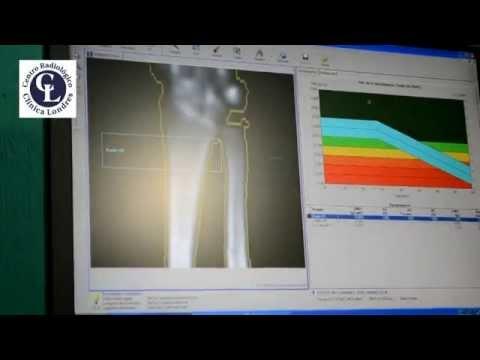 ¿Por qué la cadera de ultrasonido