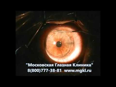 Лазерная коррекция зрения в спб мечникова