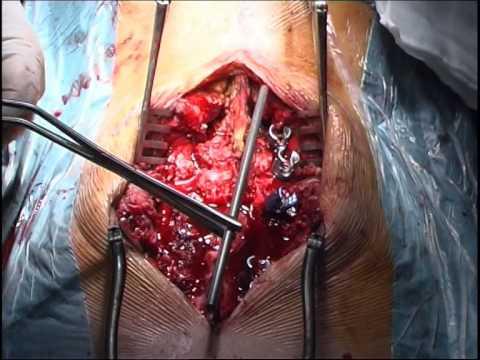 Sintomi di artrite mascella giunti