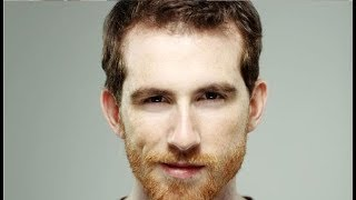 How To Get Rid Of Ginger Beard Hairs