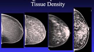 Introduction to Mammography