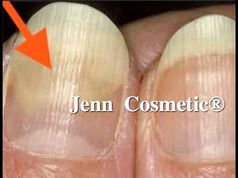 Wie die Schuppenflechte auf den Nägeln des Fotos zu behandeln