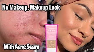 CLEAN FRESH BY COVERGIRL | NO MAKEUP, MAKEUP LOOK ON ACNE PRONE SKIN