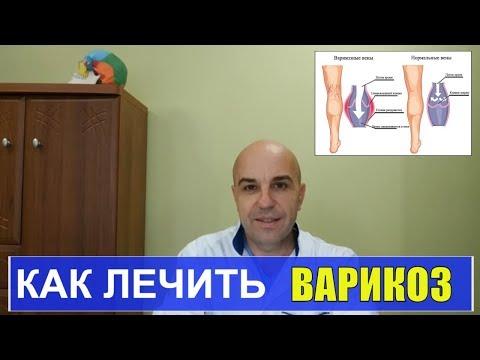 Как лечить варикоз в домашних условиях #варикоз#