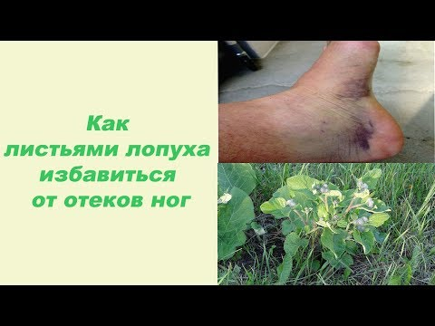 Лечение суставов в оренбургской области
