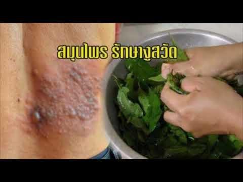 โรคสะเก็ดเงิน ifa บวกปลอม