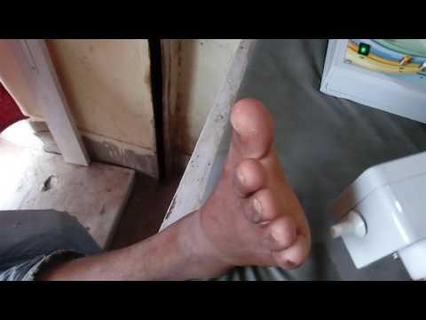 Biothezi-VPT Foot Biothesiometer