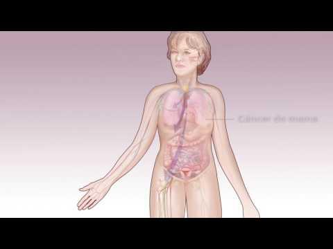 Tratamiento de la prostatitis per se